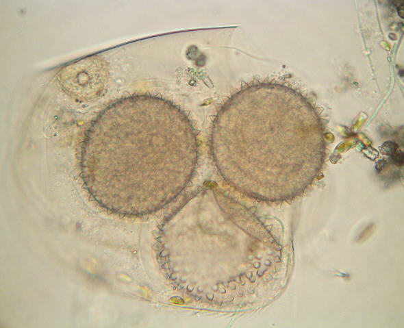 [ Dactylobiotus dispar, Tardigrade, Totale ]